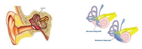 Sindromul Meniere