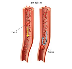 Tromboflebita