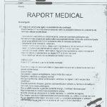 Neoplasm al glandei parotide stangi - operat